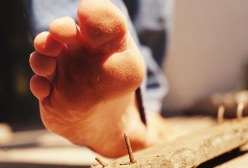 Photo of العناية بالجروح
