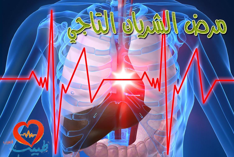 Photo of مرض الشريان التاجي Coronary Artery Disease