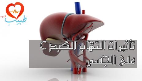 Photo of تأثيرات التهاب الكبد سي HCV على الجسم