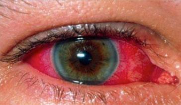 Photo of التهاب العنبية Uveitis