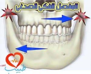 طبيب ع اسنان صرير
