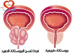 طبيب ع بولية تضخم بروستاتة 1