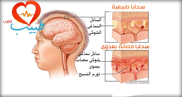 طبيب ع عصبية سحايا 33