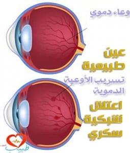 طبيب ع عيون اعتلال شبكية سكري