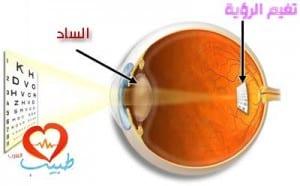 طبيب ع عيون ساد