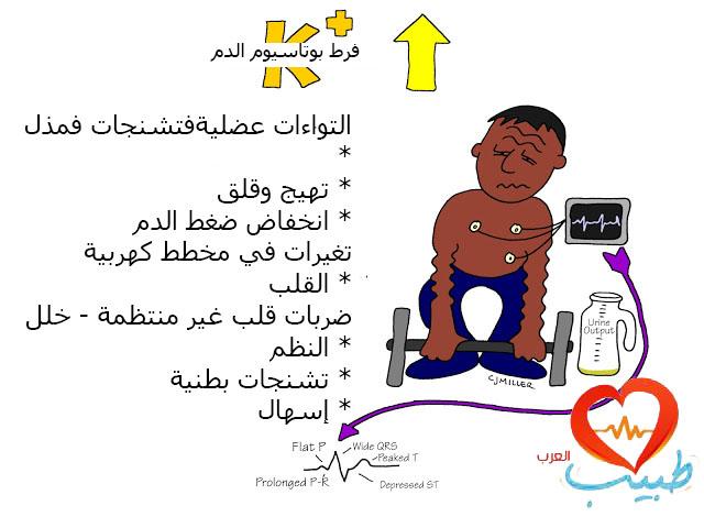 طبيب ع فرط بوتاسيوم 1