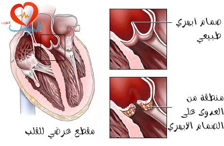 طبيب ع قلبية التخاب شغاف