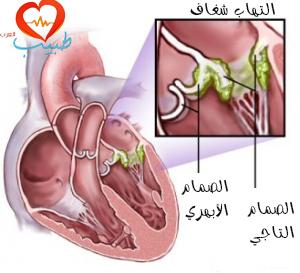 طبيب ع قلبية التهاب شغاف 1