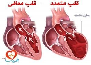 اعتلال عضلة القلب المتمدد