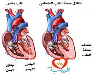 اعتلال عضلة القلب الضخامي