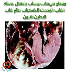 طبيب ع قلب اعتلال قلب