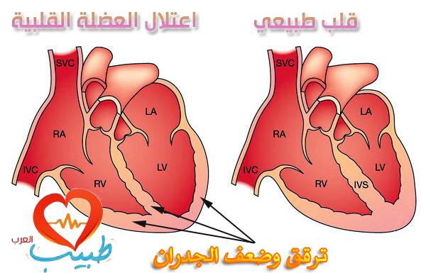 اعتلال عضلة القلب Cardiomyopathy