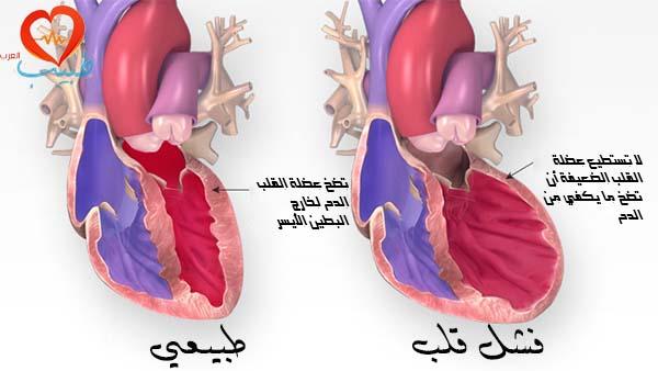 طبيب ع قلب قشل