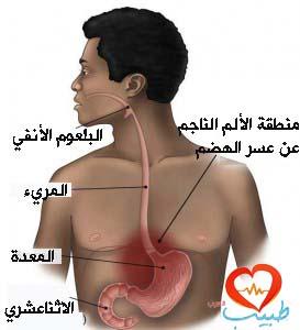 أعراض عسر الهضم