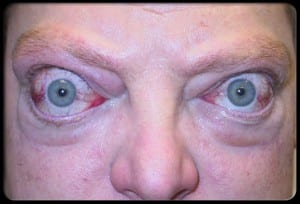 مرض غريفز للعيون