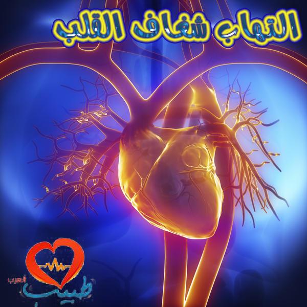 Photo of التهاب شغاف القلب ( التهاب البطانة الداخلية للقلب ) Endocarditis