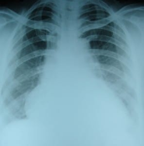 CXR-in-heart-failure