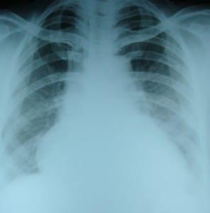 CXR-in-heart-failure