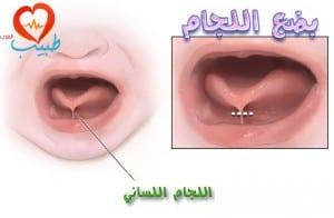 طبيب ع اطفال التصاث اللسان بضع اللجام