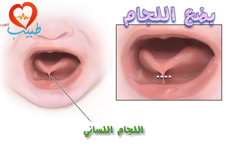 Photo of التصاق اللسان ( عقد اللسان Ankyloglossia )
