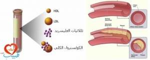 طبيب ع شحوم دم 1