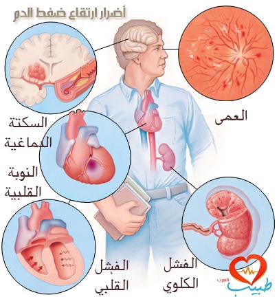 طبيب ع ضفط دم مضاغقات