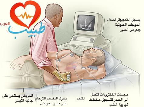 مخطط صدى القلب ( الإيكو )