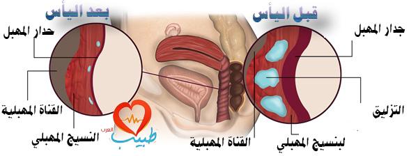جفاف المهبل Vaginal dryness: أسبابه وأعراضه وعلاجه