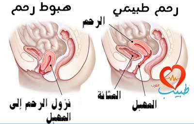 هبوط الرحم هو تدلي عضو أو أكثر من الأعضاء الحوضية في المهبل