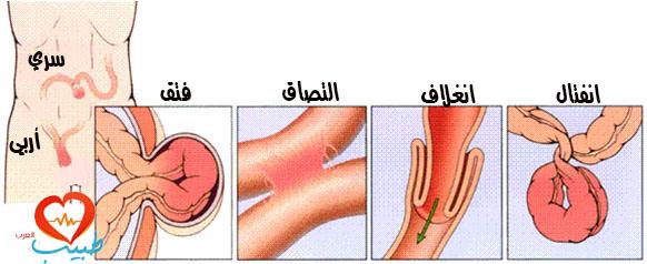 طبيب ع هضم اسباب الانسداد المعوي