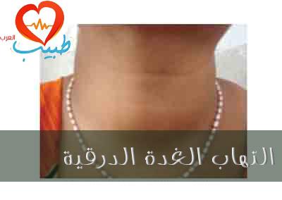 Photo of التهاب الغدة الدرقية Thyroiditis