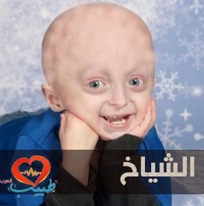 Photo of الشياخ: عندما تضرب الشيخوخة ريعان الصبا