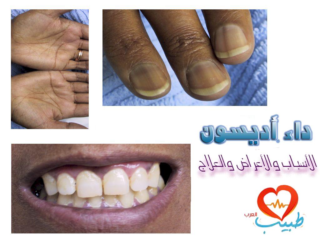 Photo of داء أديسون Addison's disease: التعريف والأسباب والأعراض والعلاج