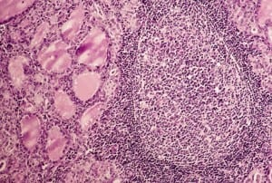 hashimotos-follicle-thyroid-glands-2-1024x691