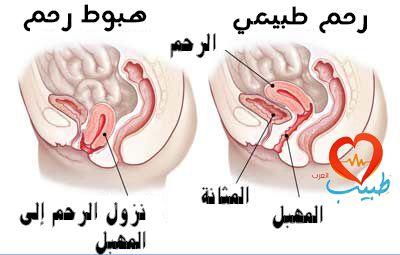 هبوط الرحم Uterine Prolapse أسبابه أنواعه علاجه