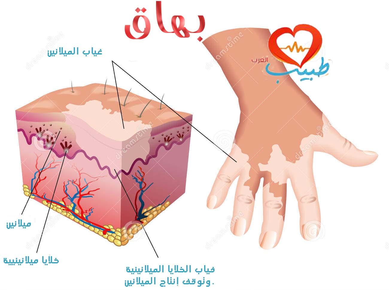 طبيب ع بهاق