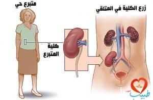 زراعة الكلى Kidney Transplantaion