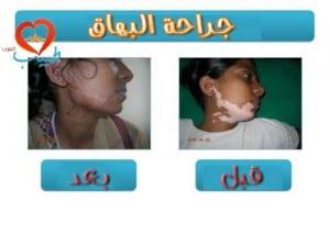 طبيب ع جلد جراحة بهاق
