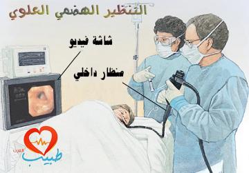 Photo of التنظير الهضمي العلوي Upper GI Endoscopy