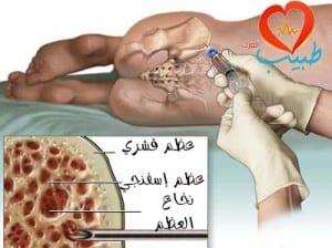 طبيب ع دم زرع نخاع 1