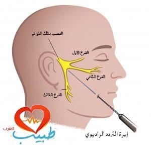 الترددات الراديوية الحرارية لعلاج ألم العصب مثلث التوائم