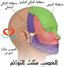 ألم العصب مثلث التوائم ( Trigeminal neuralgia ): أسبابه وأعراضه وعلاجه