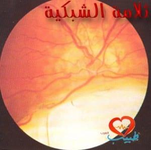 طبيب ع عيون ثلامة عين