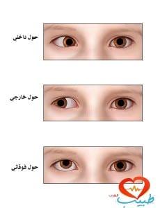 طبيب ع عيون حول انواع