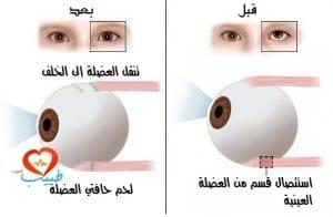 طبيب ع عيون حول جراحة