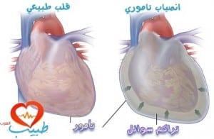 طبيب ع قلب انصباب تامور