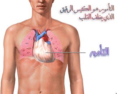 طبيب ع قلب تشريح تامور