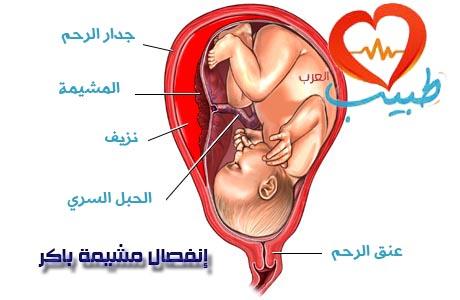 انفصال المشيمة الباكر Placenta abruptio