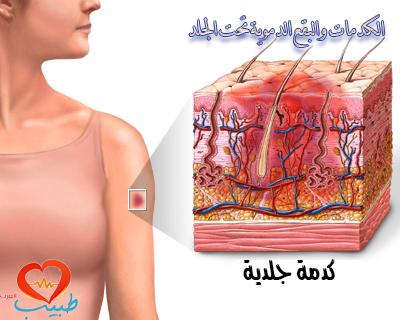 Photo of الكدمات والبقع الدموية تحت الجلد
