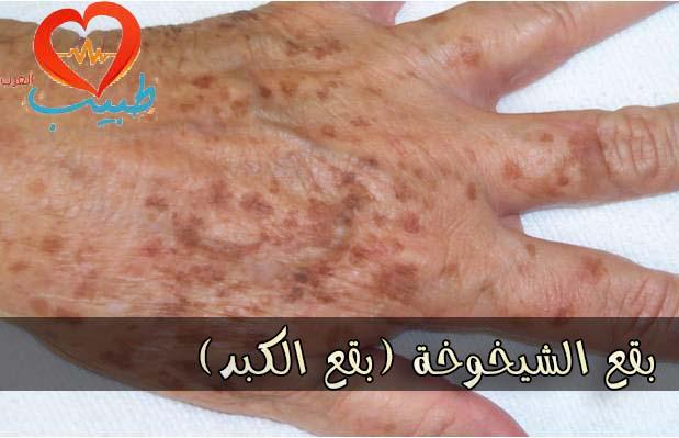Photo of بقع الشيخوخة Age spots